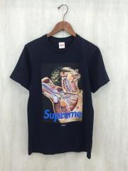 ×UNDER COVER/アナトミーTシャツ/S/コットン/BLK/2016AW